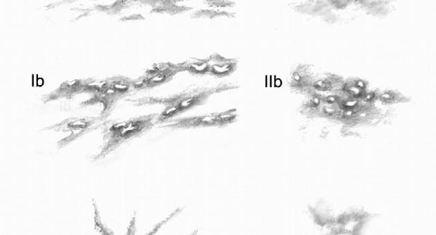 НЕОПУХОЛЕОБРАЗНЫЕ ПОРАЖЕНИЯ МОЛОЧНОЙ ЖЕЛЕЗЫ: АНАЛИЗ ХАРАКТЕРНЫХ ПРИЗНАКОВ И ОЦЕНКА BI-RADS - Статьи RH