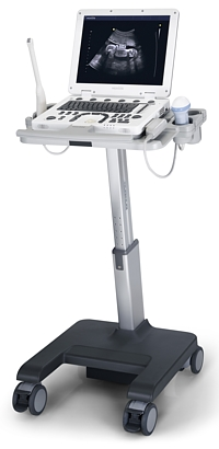 УЗД Апарат SAMSUNG Medison MySono U5 - RH