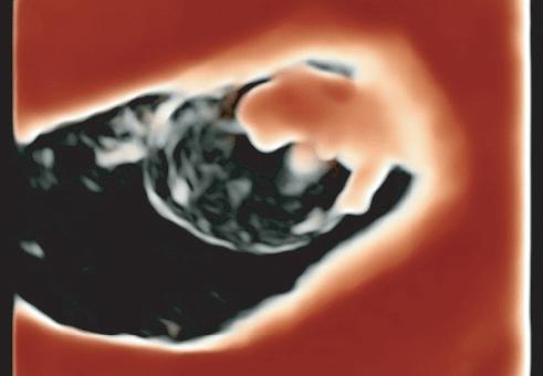 УЛЬТРАЗВУКОВІ ЗОБРАЖЕННЯ ПЕРШОГО ТРИМЕСТРУ ЗА ДОПОМОГОЮ ТЕХНОЛОГІЇ  HDLIVE - Статті RH