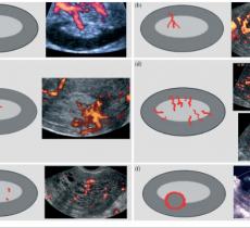 IETA оценка эндометрия и определение риска развития рака эндометрия по балльной системе (REC score)