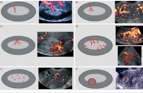 IETA Оцінка ендометрію та визначення ризику розвитку раку ендометрію за бальною системою (REC score)