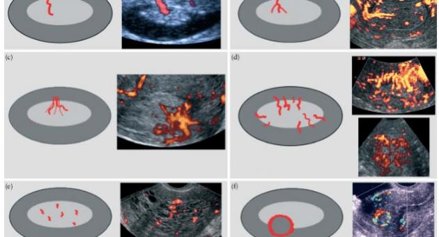 IETA оценка эндометрия и определение риска развития рака эндометрия по балльной системе (REC score) - Статьи RH
