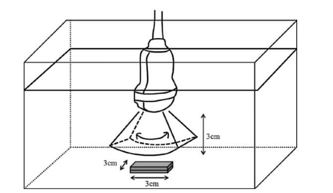Виртуальная лапароскопия: первый опыт применения трехмерной ультрасонографии FLY THRU с целью оценки особенностей поверхности печени, фото