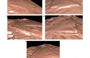 Віртуальна лапароскопія: перший досвід застосування тривимірної ультрасонографії FLY THRU з метою оцінки особливостей поверхні печінки, фото