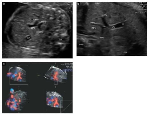 Внутриутробное развитие умбиликально-портальной венозной системы: двух- и трехмерное ультразвуковое исследование, фото