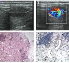 «Очаговый тиреоидный пожар» на цветной доплерографии: специфическая особенность очагового тиреоидита Хашимото