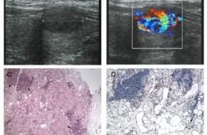 «Вогнищева тиреоїдна пожежа» на кольоровій доплерографії: специфічна особливість вогнищевого тиреоїдиту Хашимото