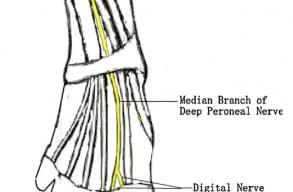 Можливість використання ультразвуку високої частоти для оцінки нейропатії нервових закінчень у хворих із синдромом діабетичної стопи