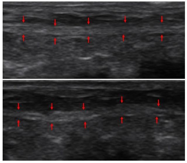 Возможность использования ультразвука высокой частоты для оценки нейропатии нервных окончаний у больных с синдромом диабетической стопы, фото