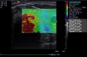 Еластографія – неінвазивний метод оцінки еластичності тканин в онкології, фото