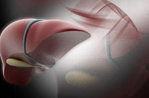 Керівництво та рекомендації EFSUMB по клінічному використання ультразвукової еластографії печінки. Частина 2: Захворювання печінки, фото