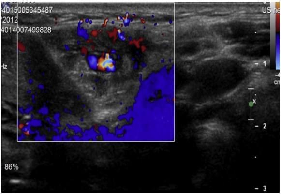 Ультразвуковое исследование слюнных желез, фото