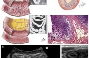 Тазовий біль: ультразвукове дослідження кишечника, фото
