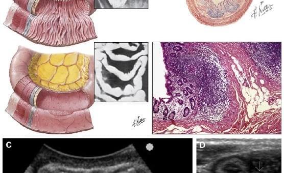 Тазовая боль: ультразвуковое исследование кишечника - Статьи RH