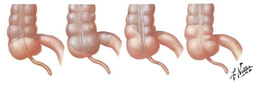 Тазовая боль: ультразвуковое исследование кишечника, фото
