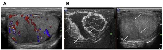 Острые заболевания органов мошонки (синдром острой мошонки), фото