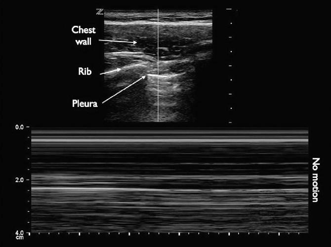 Ультразвукові дослідження у пацієнтів в критичному стані (Частина II), фото