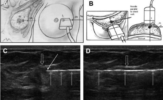 Втручання на молочній залозі під ультразвуковим контролем - Статті RH