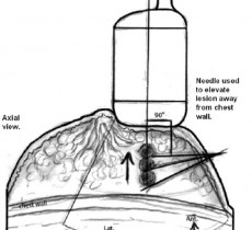 Вмешательства на молочной железе под ультразвуковым контролем (Часть II)