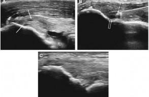Втручання на органах опорно-рухової системи під ультразвуковим контролем: принципи і перспективи розвитку (Частина 2), фото