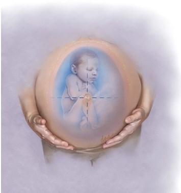 Объем амниотической жидкости: когда и как действовать - Статьи RH