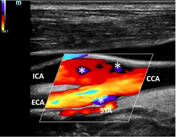 Методы векторной визуализации потока: инновационная ультразвуковая методика исследования кровотока - Статьи RH