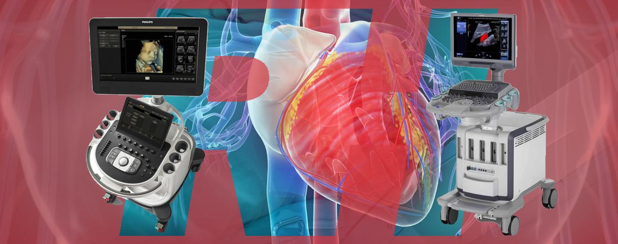Представники экспертних УЗ-апаратів для досліджень в області кардіології - Статті RH