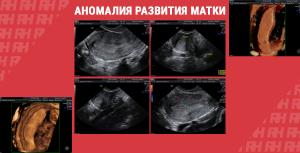 Клинический случай: аномалия развития матки - Новини RH