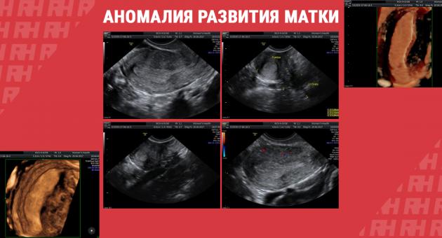 Клинический случай: аномалия развития матки - Статьи RH