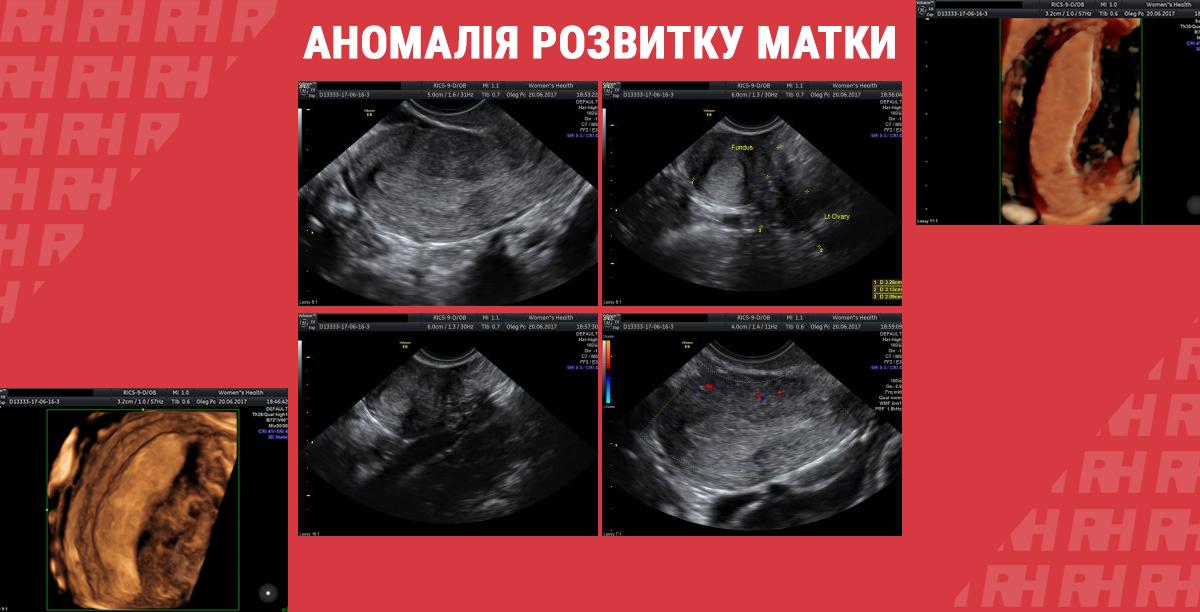 Клінічний випадок: аномалія розвитку матки - Статті RH