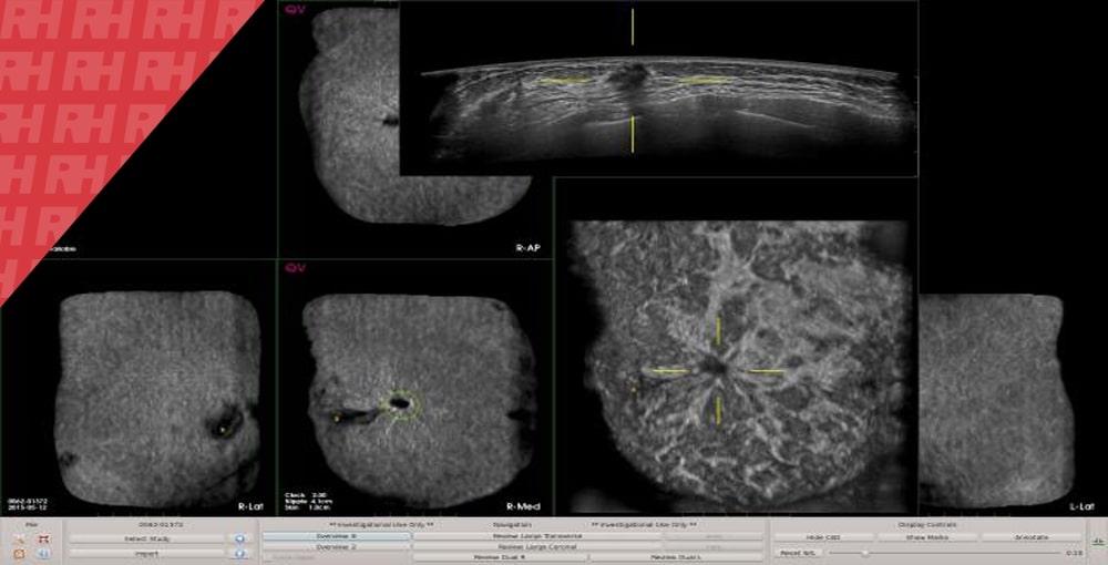 QView Medical демонструє QVCAD для обстежень ABUS на RSNA 2018 - Статті RH