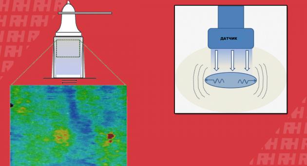 Клінічне використання еластографії зсувної хвилі в дослідженні опорно-рухової системи - Статті RH