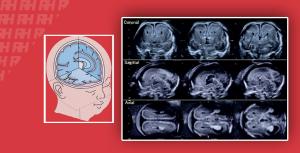 Тривимірна нейросонографія – нова область в дослідженні стану плода - Новини RH