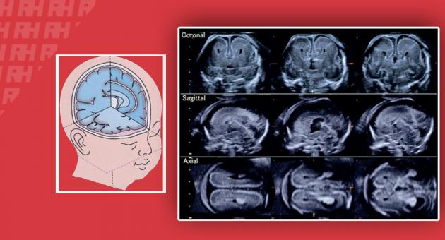 Тривимірна нейросонографія – нова область в дослідженні стану плода - Статті RH