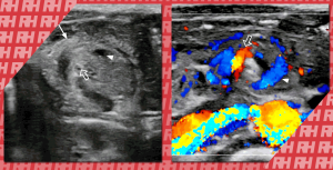 Екстрена ультрасонографія шлунково-кишкового тракту у дітей - Новини RH