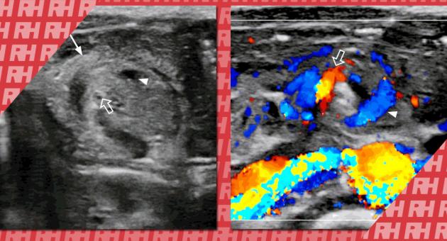 Екстрена ультрасонографія шлунково-кишкового тракту у дітей - Статті RH