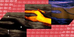 Особливості УЗД судин з використанням кольорового доплера і контрастного посилення - Новини RH