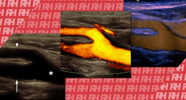 Особливості УЗД судин з використанням кольорового доплера і контрастного посилення - Статті RH