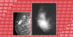 УЗД при раку молочної залози - Новини RH