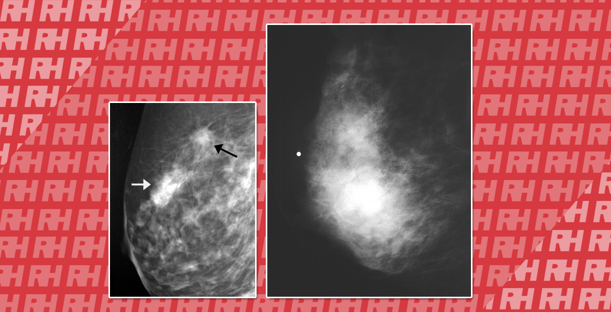 УЗД при раку молочної залози - Статті RH