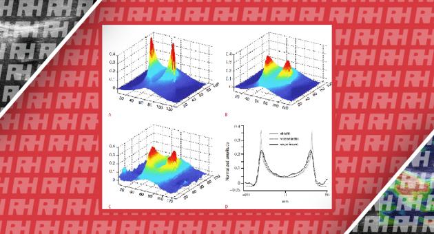 Сучасний стан УЗД опорно-рухового апарату із застосуванням еластографії зсувної хвилі - Статті RH