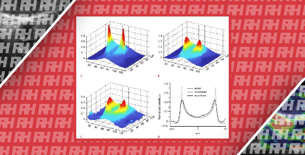 Современное состояние УЗИ опорно-двигательного аппарата с применением эластографии сдвиговой волны - Статьи RH