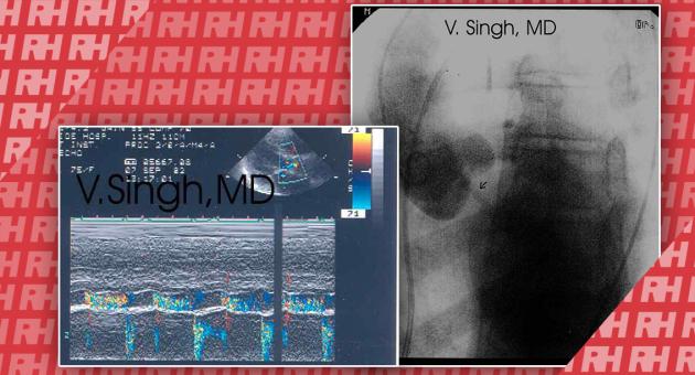 Ультразвукова візуалізація аортальної регургітації - Статті RH