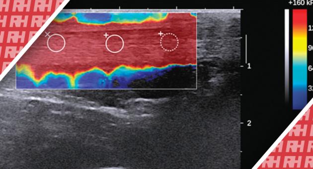 Характеристика здорових і пошкоджених ахіллових сухожиль за допомогою еластографії зсувної хвилі - Статті RH