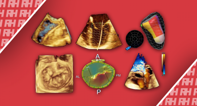 Огляд технологічних досягнень в ультразвуковій візуалізації серця - Статті RH