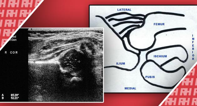 Ультразвукова візуалізація при дисплазії кульшового суглоба - Статті RH