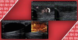 Діагностичні помилки при УЗД кістково-м'язової системи і способи їх усунення - Новини RH