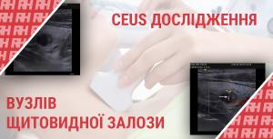 Застосування УЗД з контрастними речовинами для оцінки вузлів щитовидної залози - Новини RH