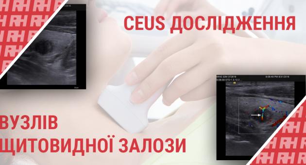 Застосування УЗД з контрастними речовинами для оцінки вузлів щитовидної залози - Статті RH