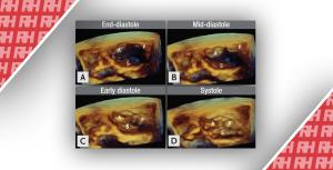 Роль сучасної 3D-ехокардіографії при захворюваннях клапанів серця - Новини RH